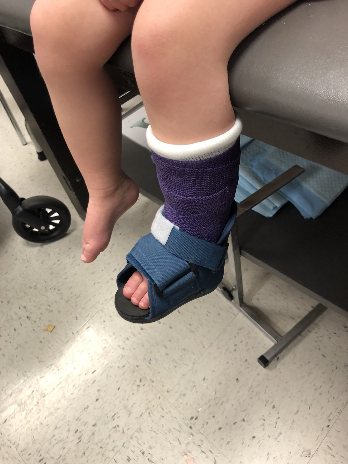 My Toddler is in a Cast – Because of a Slide